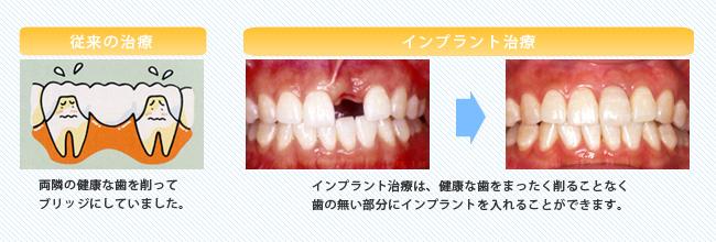歯を1本だけ失った場合のインプラント治療