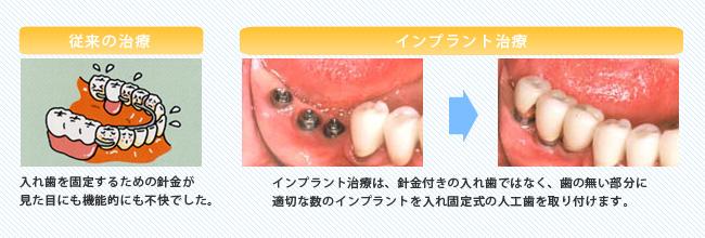歯を数本失った場合のインプラント治療